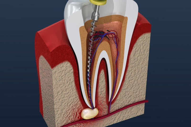 Why do root canals take 2 visits? | Best Dental in Houston, TX