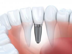 Dental implants in Lacey are the gold standard for artificial teeth – they look great, they can last a lifetime, and they make your jawbone stronger.