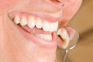 dentist in lacey on preventive care