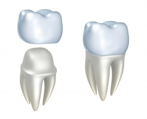Your dentist for CEREC in Lacey.